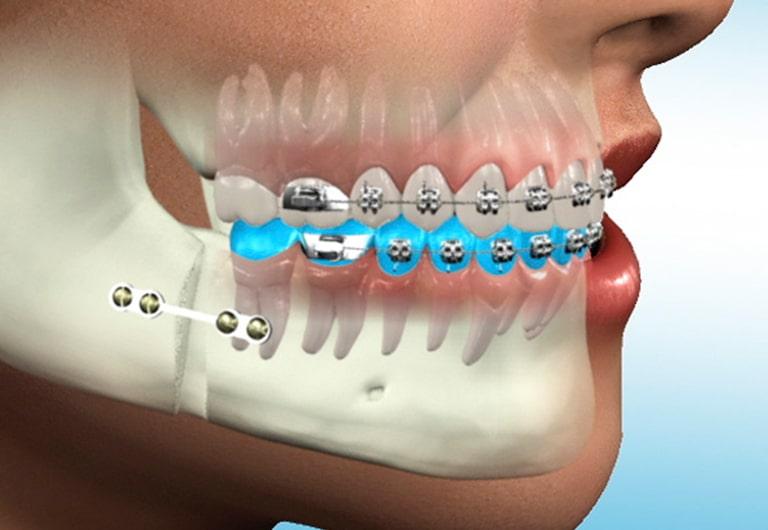 Ağız, Diş ve Çene Cerrahisi